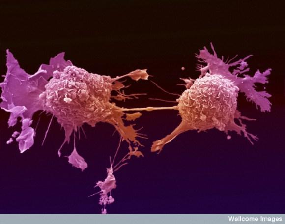 B0006883 Lung cancer cells